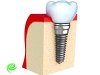 השתלות שיניים לשיפור איכות החיים