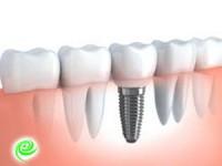 כמה עולה השתלת שיניים? מידע ומחירים