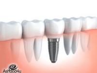 מהי השתלת שיניים בזאלית?