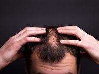שמפו נגד נשירת שיער לגברים