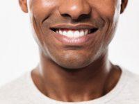 כל מה שצריך לדעת על הלבנת שיניים